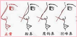 注射隆鼻适应人群