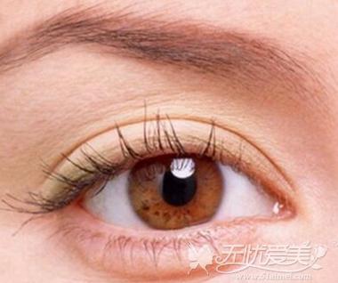 双眼皮形状 新月形双眼皮
