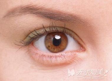 双眼皮形状 欧式双眼皮