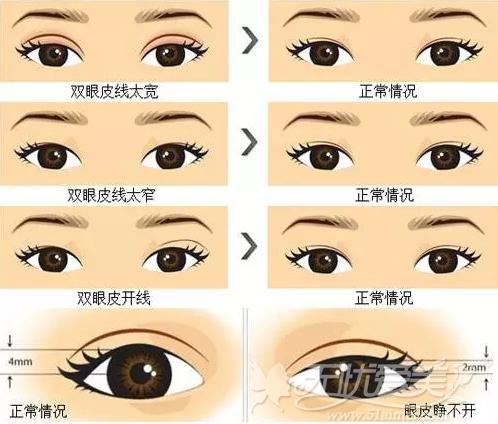双眼皮手术失败了什么时候能修复