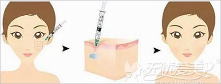 玻尿酸的注射流程