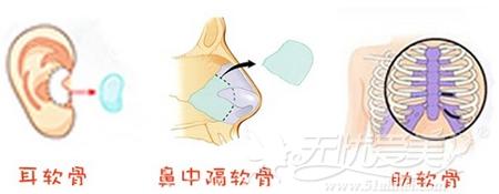 常用于隆鼻的自体软骨