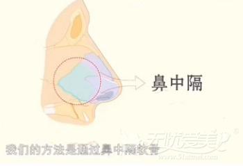 鼻中隔软骨塑造鼻尖