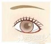 眼睑下至术手术设计方案