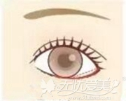 眼睑下至术手术设计