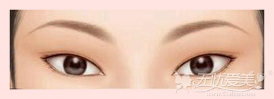 眼睑下至术手术可改善吊稍眼