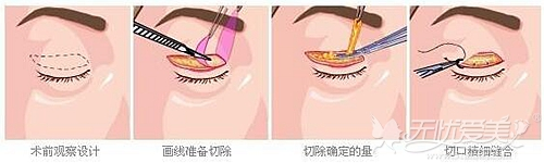 上睑下垂手术方法和过程