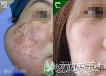 手术修复疤痕的方法