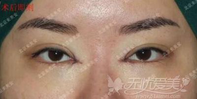 北京来美安内眼角修复手术即刻展示