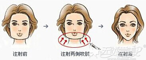 打完瘦脸针后咬肌在一定时间内是缩小的
