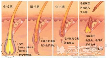 生长期的毛发才能做激光脱毛