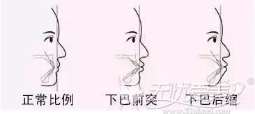 下颌后缩使侧面线条不流畅