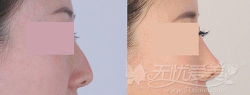 综合隆鼻案例