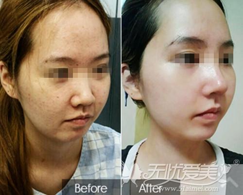 皮肤护理案例
