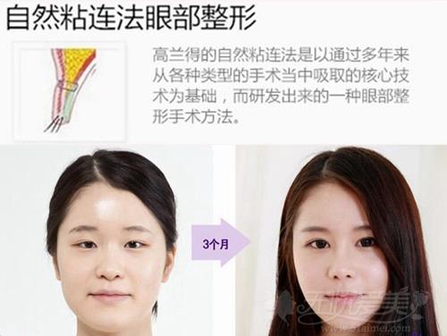 韩国高兰得自然粘连法双眼皮