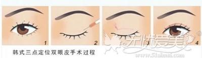 三点定位双眼皮手术