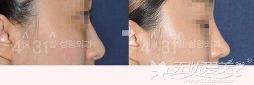 韩国4月31日整形外科鹰钩鼻矫正+假体隆鼻术后3个月