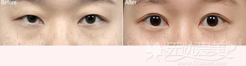 韩国新帝瑞娜双眼皮+开内眼角术后3个月