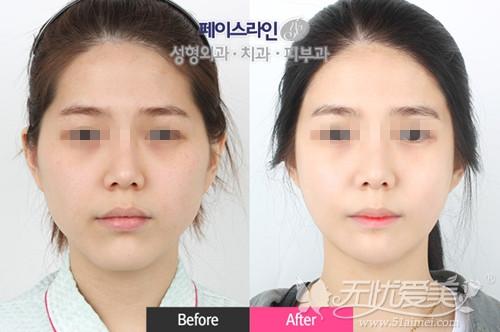 韩国face-line整形医院颧骨+下颌角+下巴整形半年