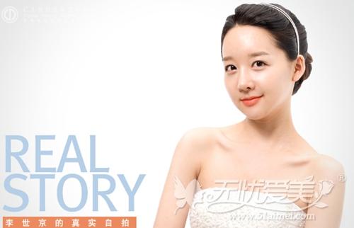 韩国双颚手术+电眼整形后
