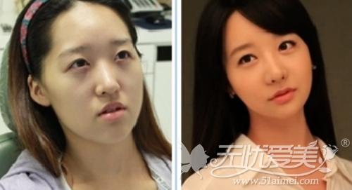 韩国双颚手术+电眼整形术前术后对比