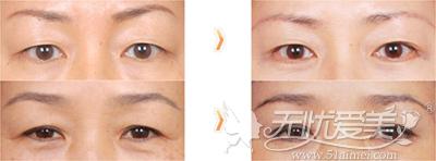 切眉手术祛除鱼尾纹