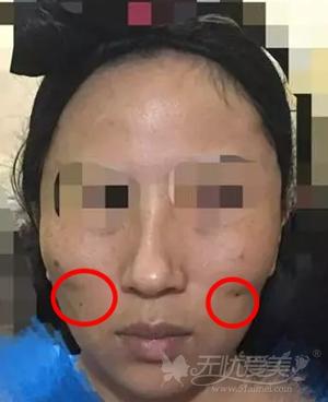 面部埋线提升手术失败案例