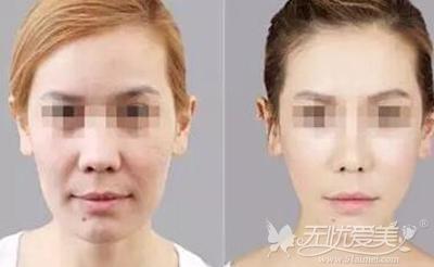 面部埋线提升案例