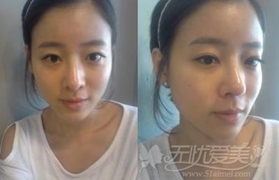 莹莹在韩国二次自体脂肪移植手术后两周