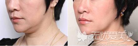 双下巴镭射吸脂真人案例对比图