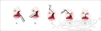 唇裂修补术原理