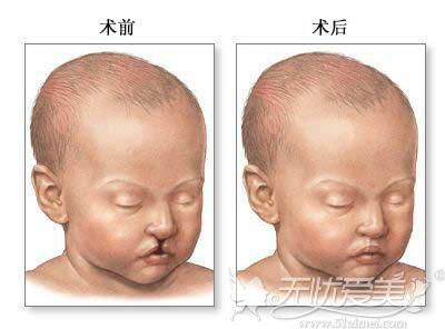 唇裂修补术的效果对比图