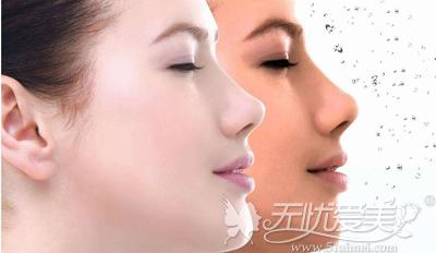 光子嫩肤是一项安全的美容项目