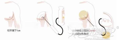 乳房吸脂术原理
