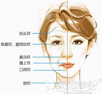 手机脖容易让脸部产生皱纹