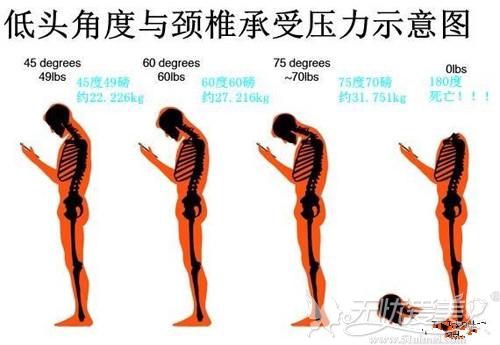 手机脖是新一代人全球性疾病