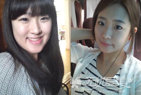 尚彩在韩国原辰双颚手术前后对比照片