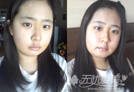 尚彩在韩国原辰双颚手术后一周