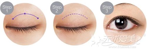 长春铭医适合28-38岁的双眼皮手术