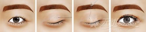 长春铭医适合18-28岁的双眼皮手术