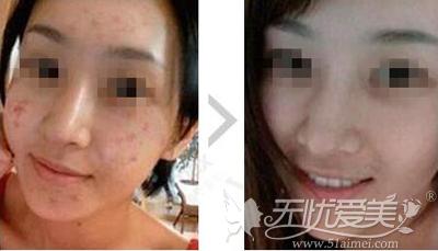 光子嫩肤祛痤疮前后对比