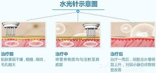 水光针补水的原理