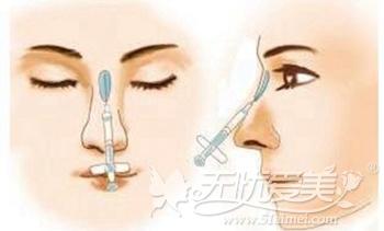 玻尿注射隆鼻