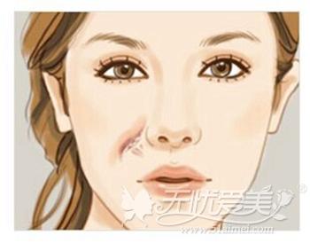 玻尿酸填充凹痕