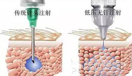 水光针针头进化