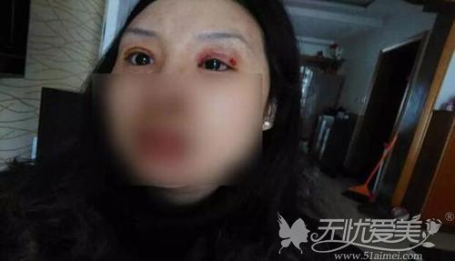 南通一女子双眼皮手术失败化脓12天