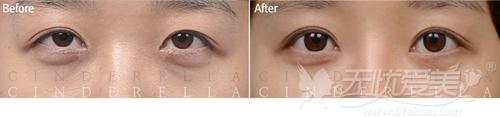 韩国灰姑娘整形外科电眼整形案例