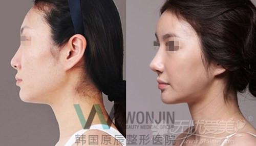 韩国原辰整形医院鼻综合案例