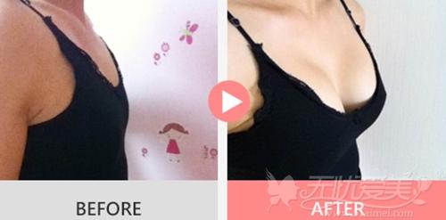 韩国麦恩整形外科假体隆胸案例