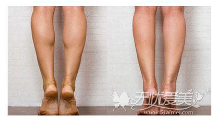 瘦腿针注射前后对比案例